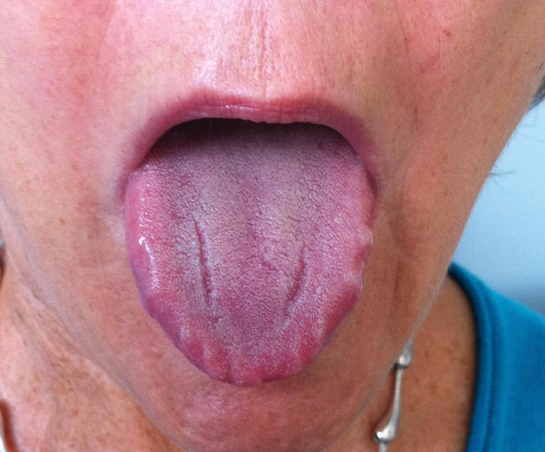 tongue scalloping which occurs along the edges of the tongue
