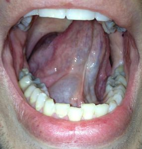A great example if a mucocele from the sublingual gland on the patient's right - also called a Ranula