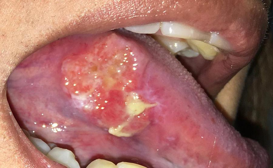A squamous cell carcinoma of the tongue.