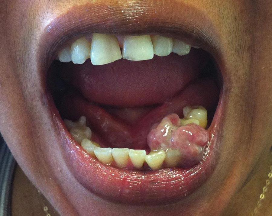 A large pyogenic granuloma