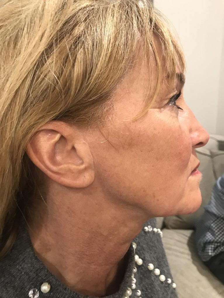 Romany's jaw after full healing of scar