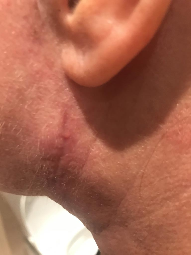 Romany once stitches have been taken out and wound has healed