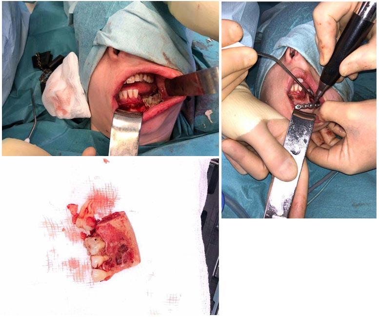 Jaw tumour operation