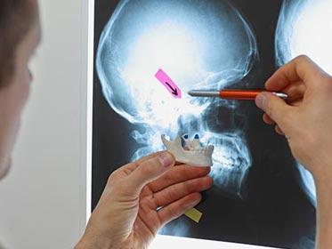 doctor examining jaw x-ray